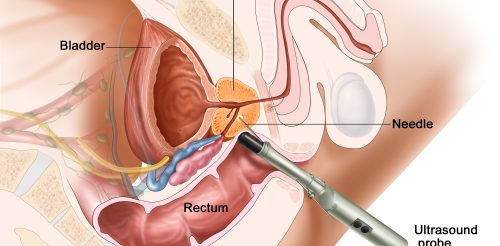 Prostate Treatment in Pune